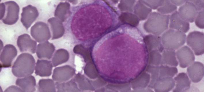 Leukemia cells. © Foto: PLOS. A Surprising New Path to Tumor Development. PLoS Biol 3/12/2005: e433 doi:10.1371/journal.pbio.0030433. Licensed under CC BY 2.5 via Wikimedia Commons