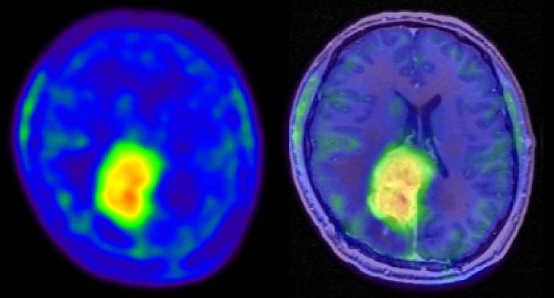 bestrahlung nebenwirkungen hirntumor